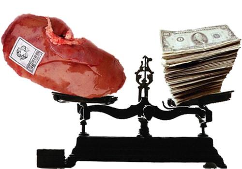 Donate Kidney Get Money